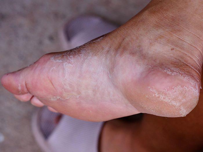 Des pieds secs et squameux peuvent être révélateurs de maladies.