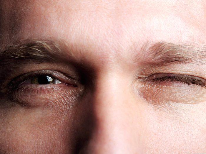Symptôme de commotion cérébrale: une dilatation irrégulière des pupilles.