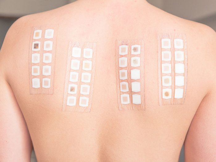 Faites des tests cutanés pour savoir si vous souffrez d'allergie plutôt que d'intolérance alimentaire.
