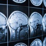 10 bonnes habitudes pour un cerveau en santé