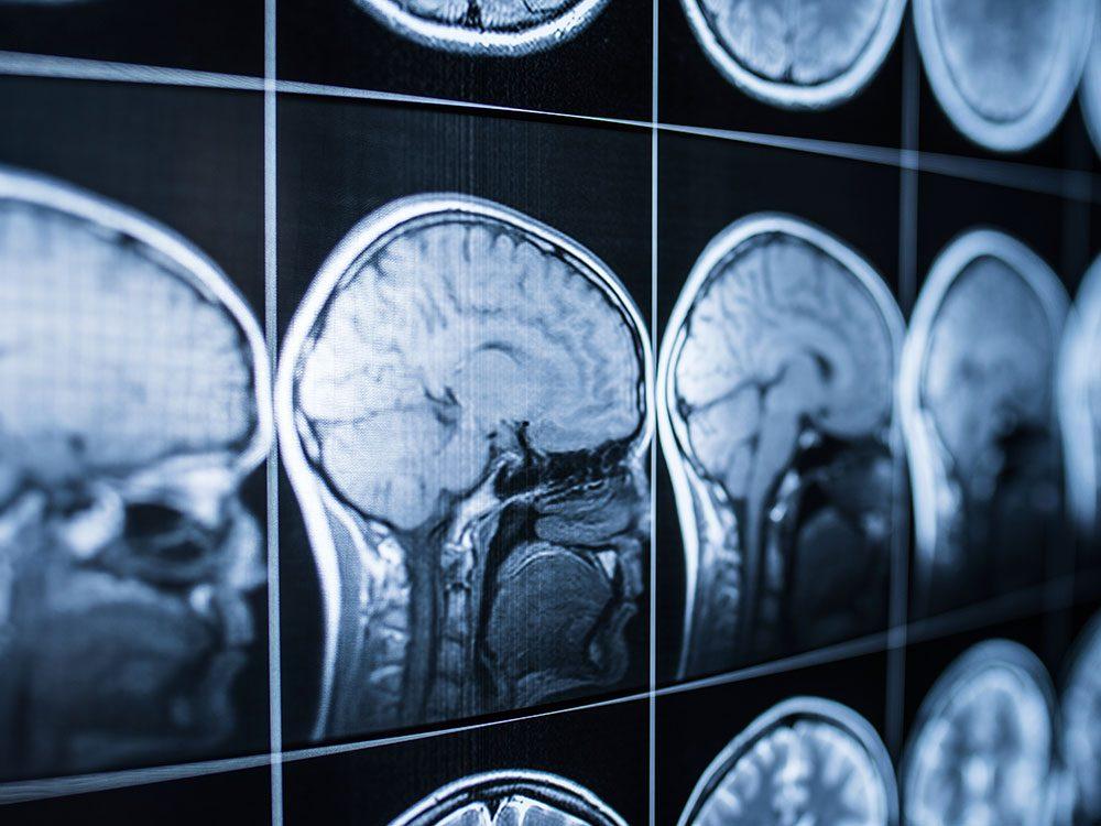 Garder son cerveau en santé et son esprit alerte.