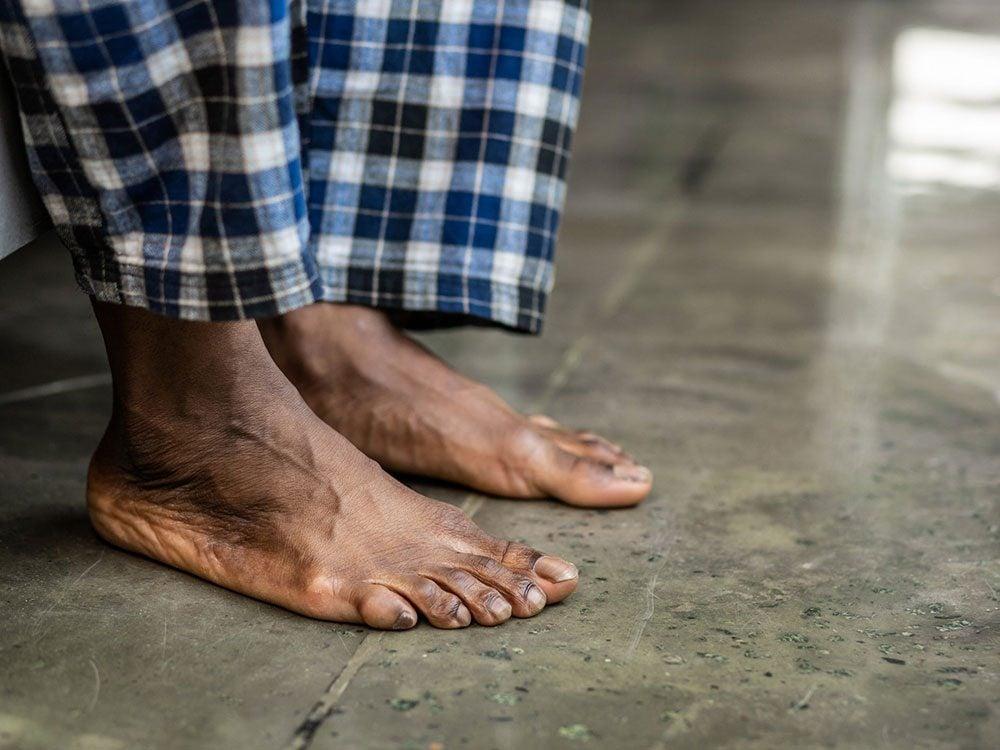 Certains états de santé peuvent empirer en étant pieds nus.