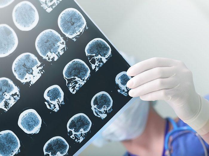 Les accidents vasculaires cérébraux font partie des symptômes de la COVID-19.
