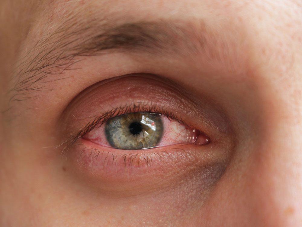 L'inflammation oculaire est l'un des symptômes de la COVID-19.