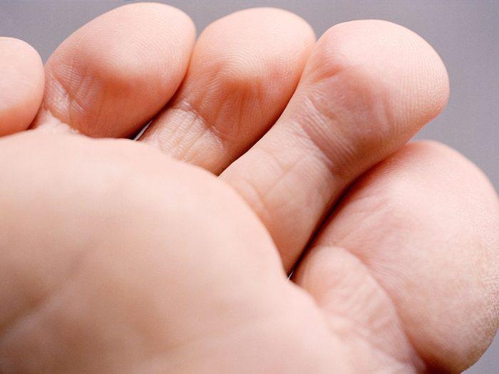 Les orteils qui démangent font partie des symptômes de la COVID-19.