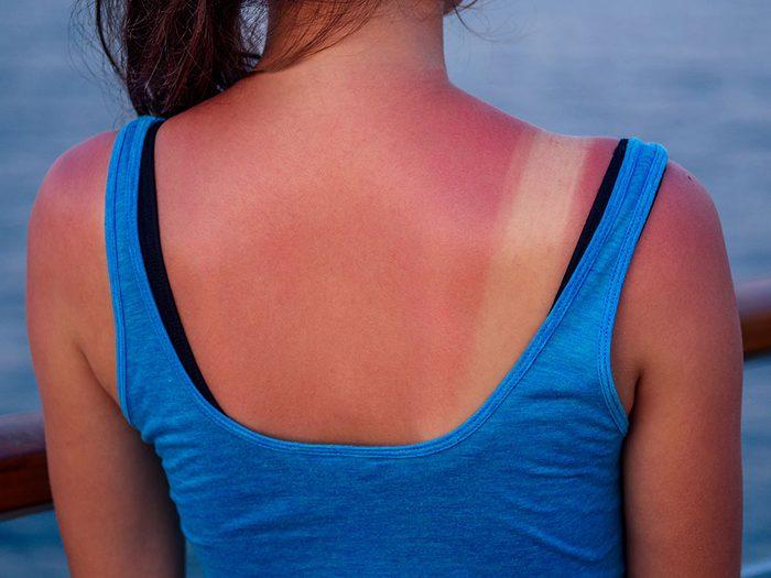 Le coup de soleil est l'un des dangers de l'été à surveiller.