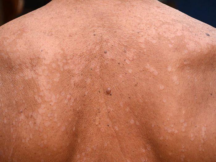 Le pityriasis versicolor est l'un des dangers de l'été à surveiller.