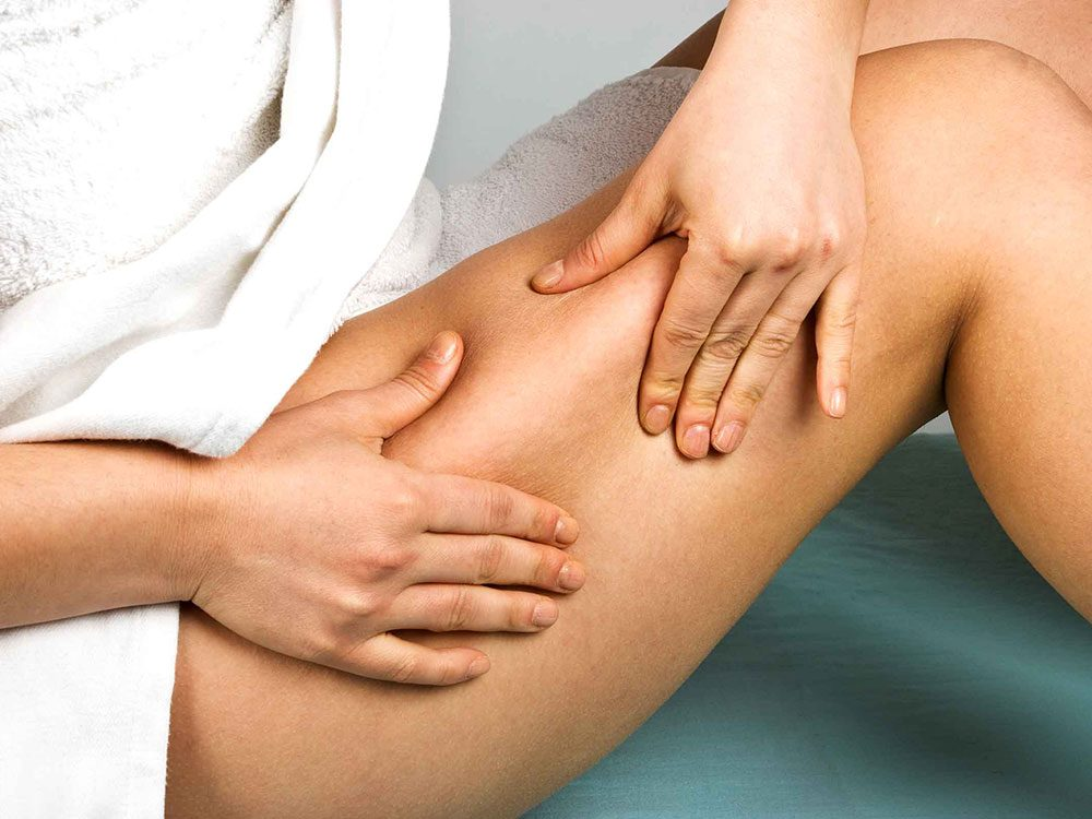 Qu'est-ce que la cellulite?