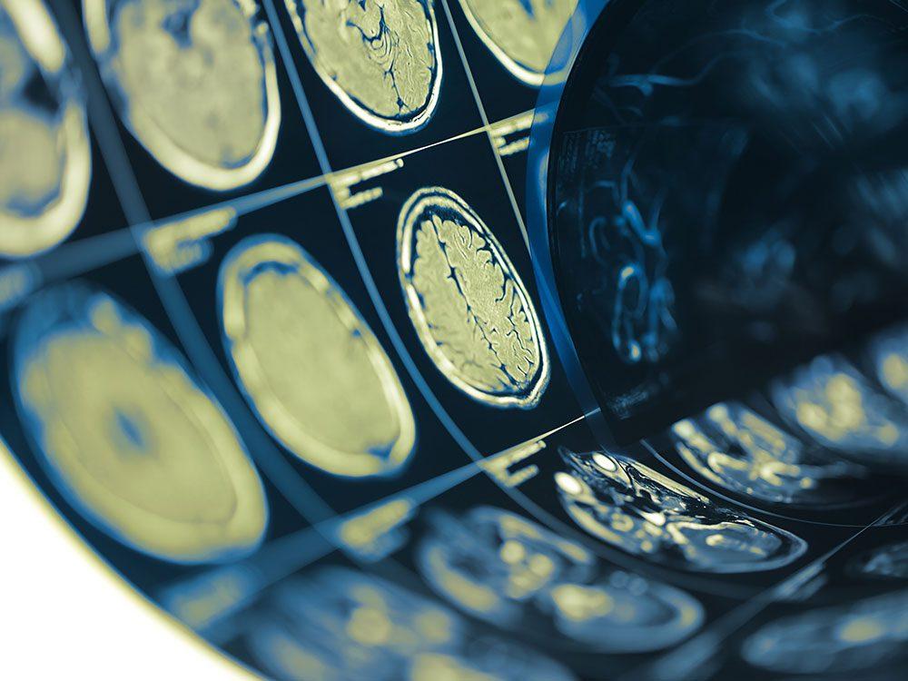 Les conséquences d'une commotion cérébrale sur le cerveau.