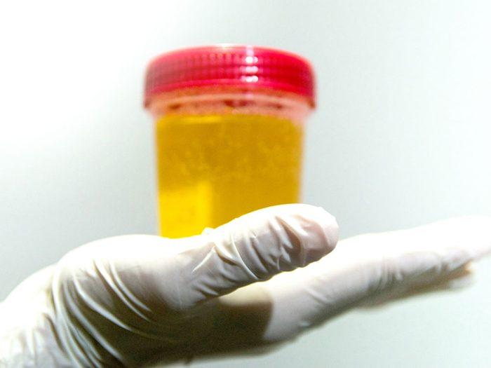 Une urine trouble peut indiquer une infection rénale.