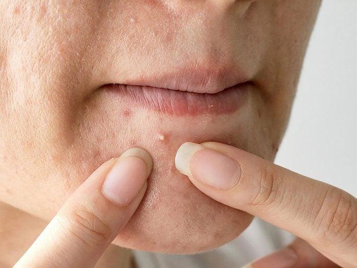 Soin de la peau: mélanger peroxyde de benzoyle et acide salicylique.