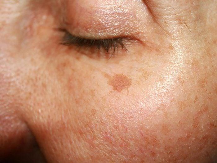 Soin de la peau: mélanger vitamine C et vitamine E.