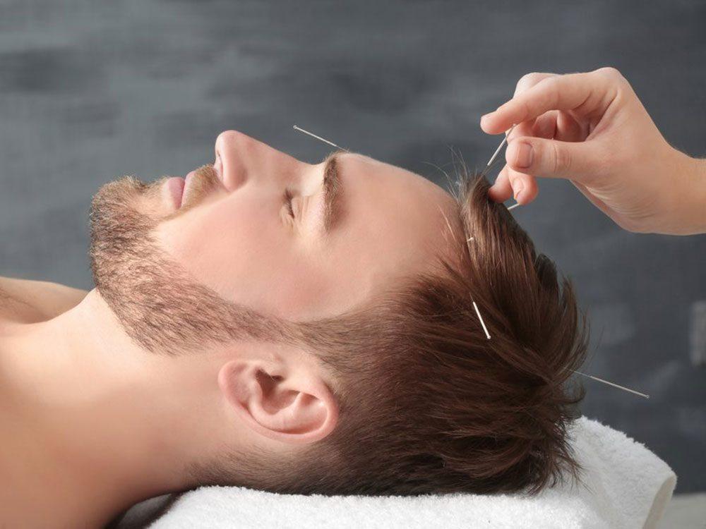 Utiliser l'acupression ou l'acupuncture pour soulager les maux de tête.