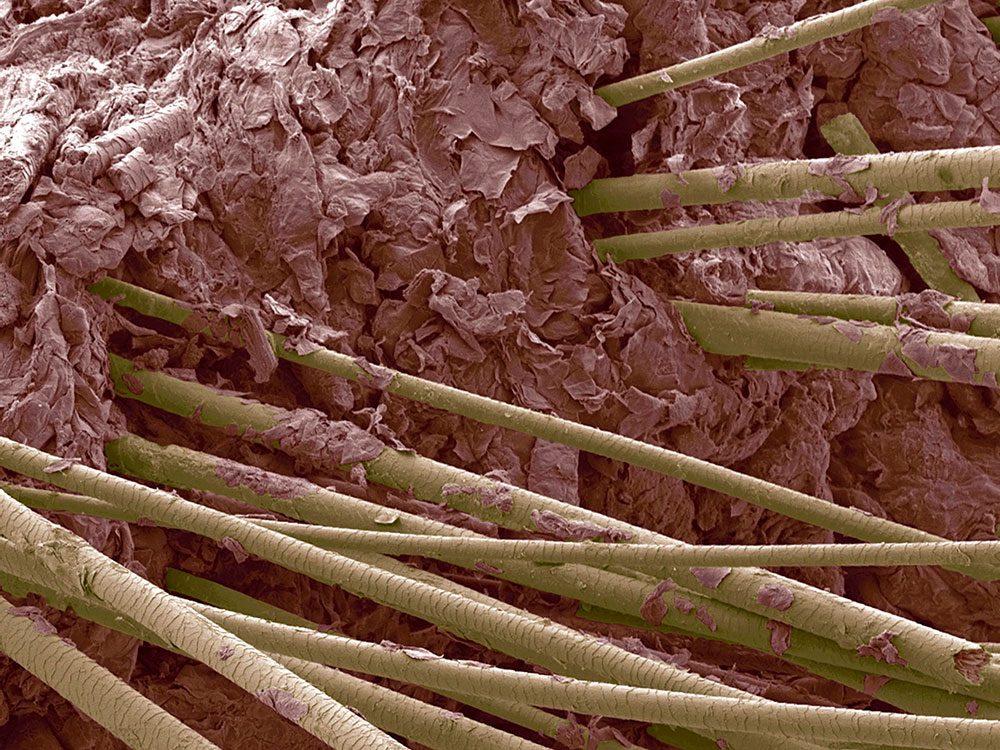Des cheveux humains en image au microscope.