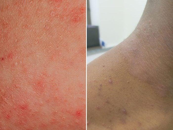 Psoriasis et eczéma: l'eczéma est aussi appelé dermatite atopique.