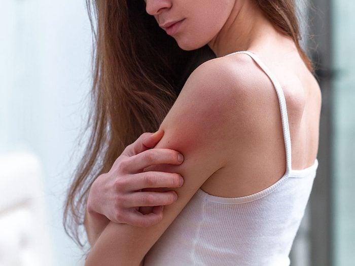 La rosacée, l'eczéma et le psoriasis peuvent se confondre.