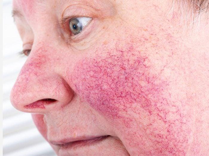 Psoriasis et eczéma: la prévention des poussées de rosacée.