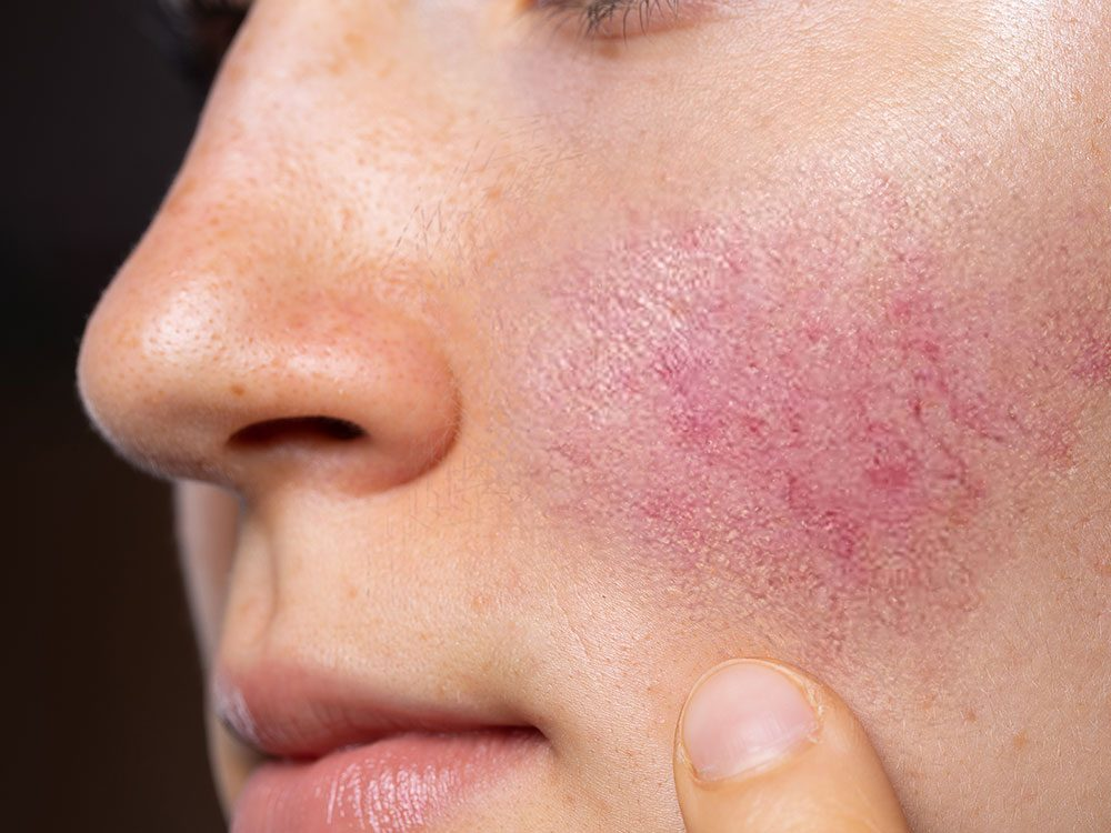 Psoriasis et eczéma: la rosacée chez l'adulte.