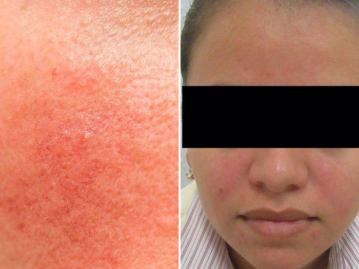 Psoriasis et eczéma: la rosacée est une maladie chronique.