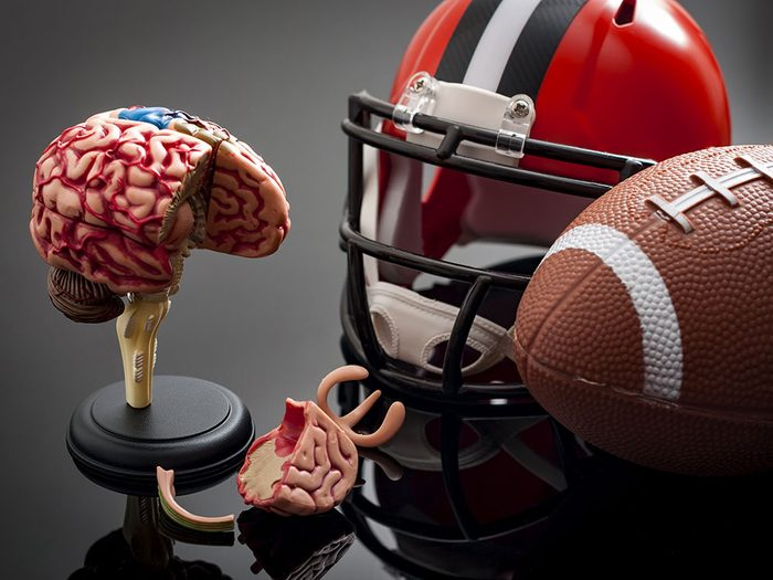 Commotion cérébrale: les coups à la tête et le cerveau.