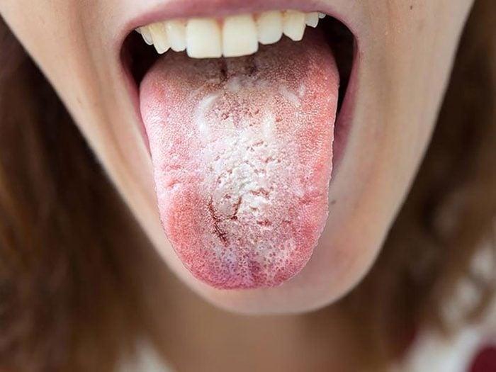 Si l'aspect de la langue est d'un blanc crémeux c'est que vous avez une infection provoquée par des levures.