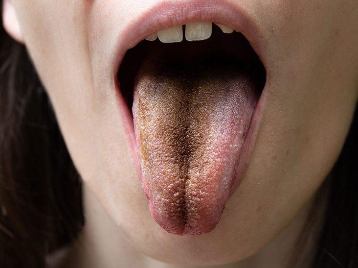 Si l'aspect de la langue est noir ou brun c'est que vous n'avez pas une très bonne hygiène buccale.