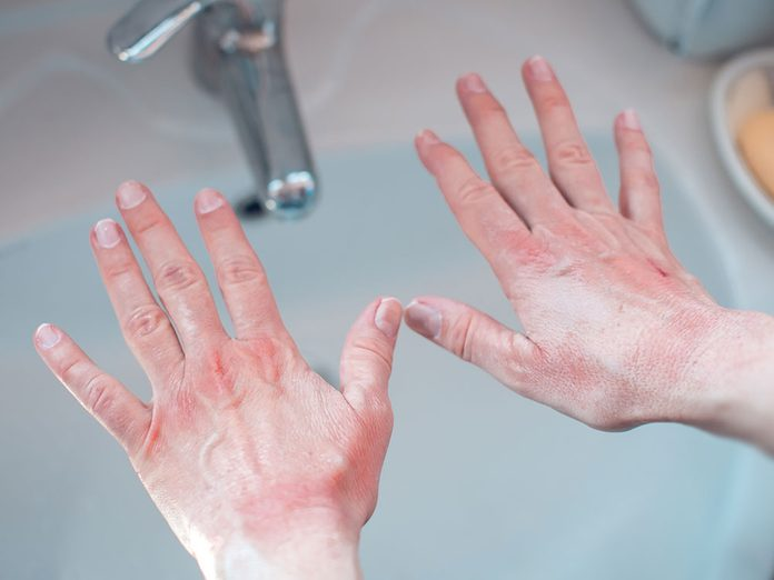 Le psoriasis ou l'eczéma peuvent faire apparaitre une tache blanche sur un ongle.