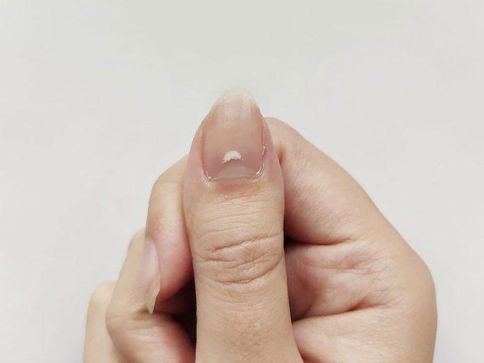 Vous avez peut-être vu apparaître une tache blanche sur un ongle à la suite d'un choc.