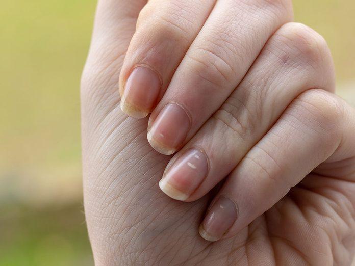 La Covid-19 peut faire apparaitre une tache blanche sur un ongle.