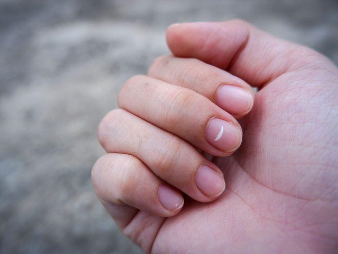 La signification d'une tache blanche sur un ongle.