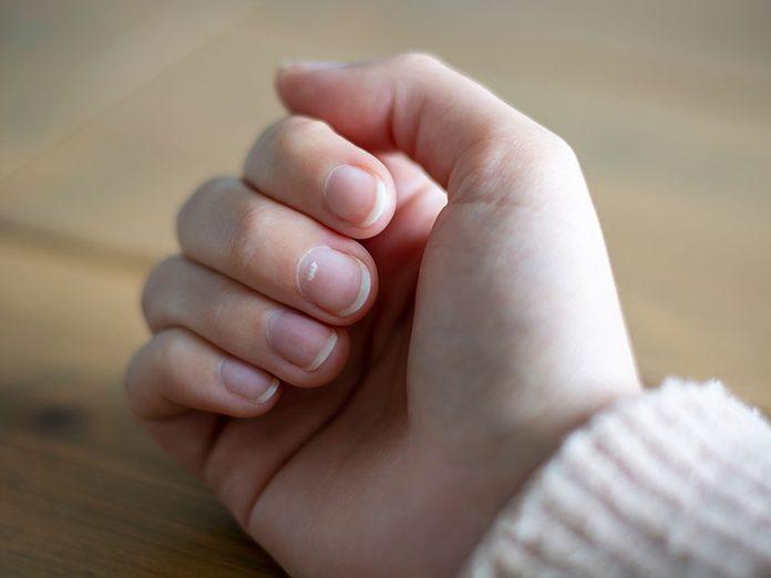 Les maladies plus graves peuvent faire apparaitre une tache blanche sur un ongle.