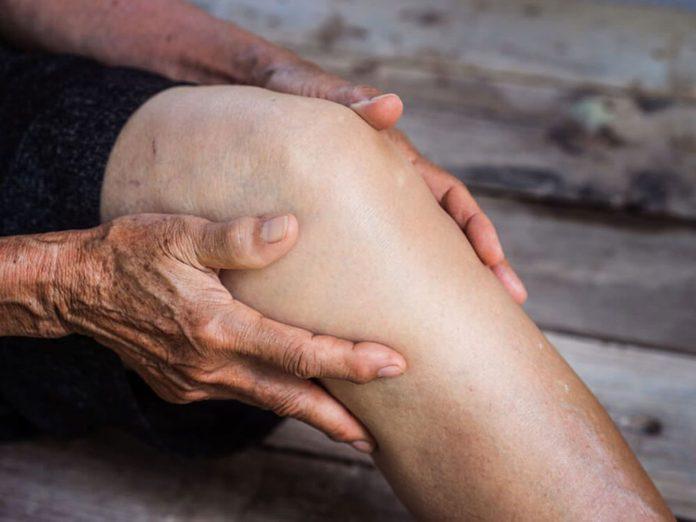 Des douleurs musculaires peuvent être signe d'arthrite.