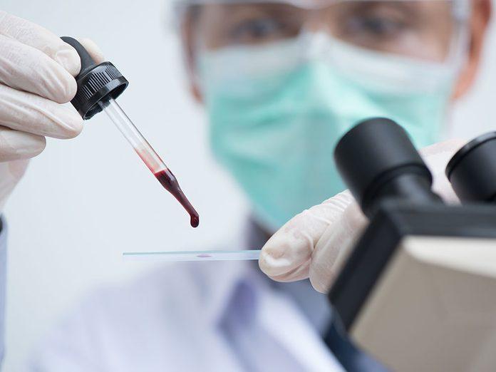 Sepsis, septicémie ou empoisonnement du sang.