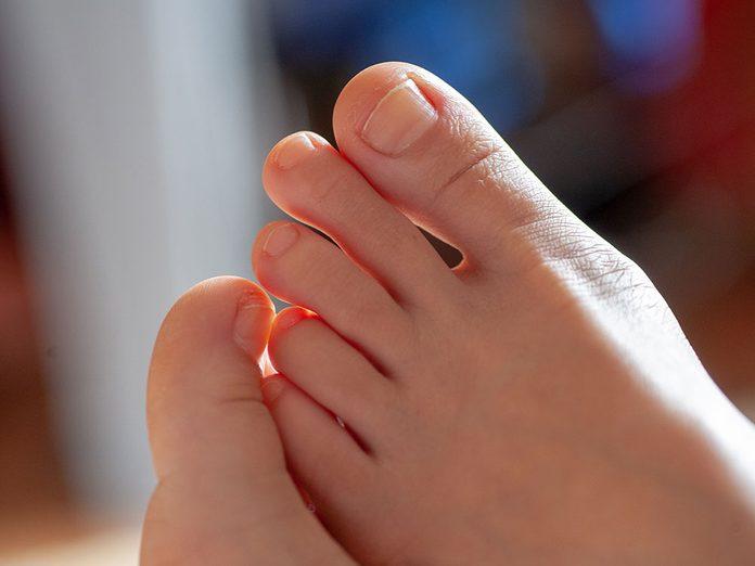 Qu'arrive-t-il aux ongles d'orteils très épais dus à divers coups?