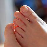 Vos ongles d'orteils sont très épais? Voici pourquoi et ce qu'il faut faire