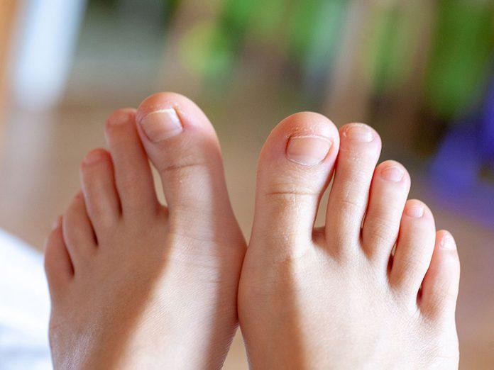 Pourquoi mes ongles d'orteils sont-ils épais?