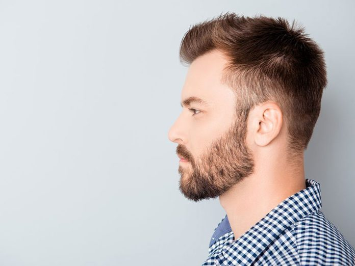L'alopécie en aires (pelade) est un problème de cheveux fréquent.