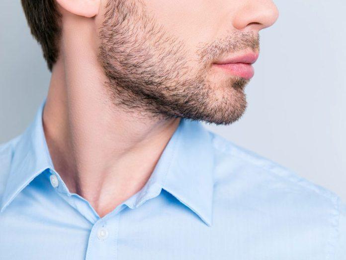 Les poils incarnés sont l'un des problèmes de cheveux fréquents.