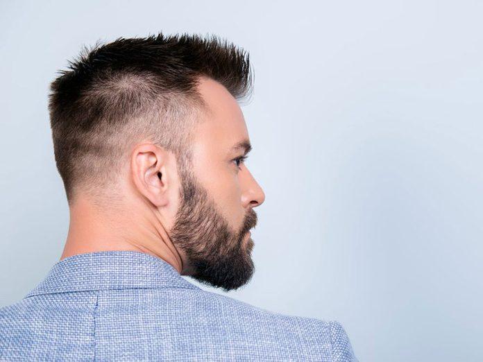 Les épis sont l'un des problèmes de cheveux fréquents.