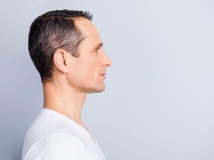L'éclaircissement graduel est un problème de cheveux fréquent.