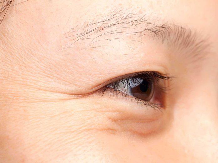 Soins de la peau: la gym faciale ne fait pas disparaître les rides.