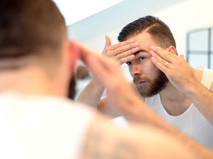 Soins de la peau: l'acné peut toucher tout le monde à tout âge.