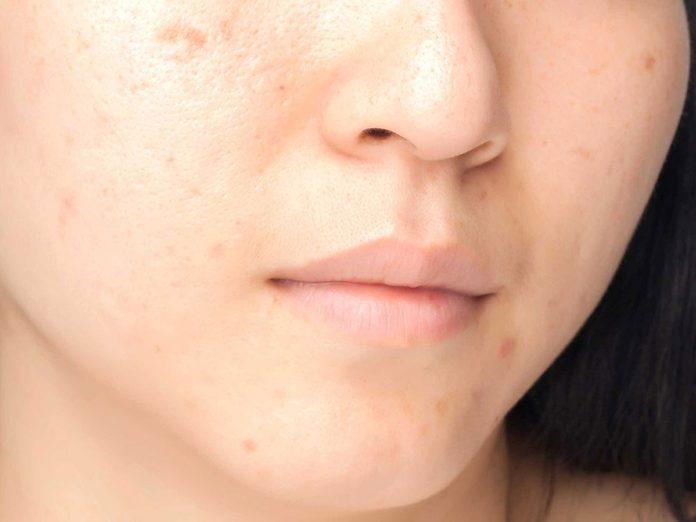Soins de la peau: les taches brunes sont dues au soleil.