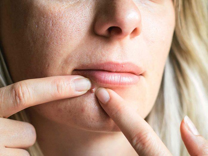 Soins de la peau: l'acné adulte diffère de celui de l'adolescence.