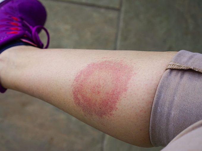 Faux: toutes les tiques sont infectées par la maladie de Lyme.