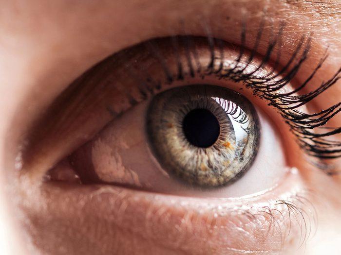 La vue se détériore à cause d'un ver dans l'oeil.