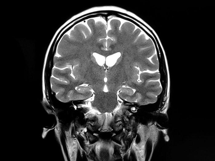 Alzheimer: des régions distinctes du cerveau.