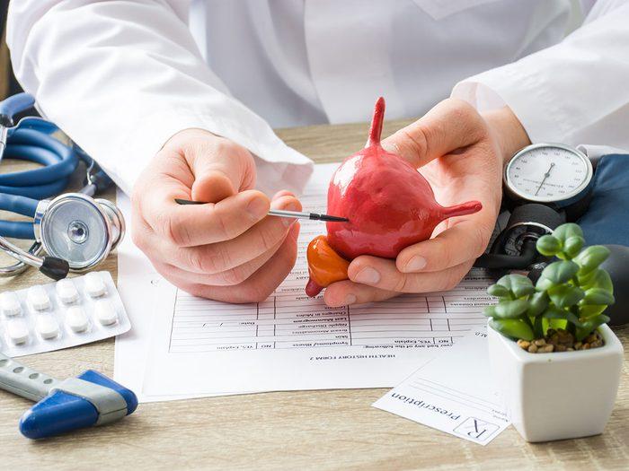 Les types de cancers de la vessie.