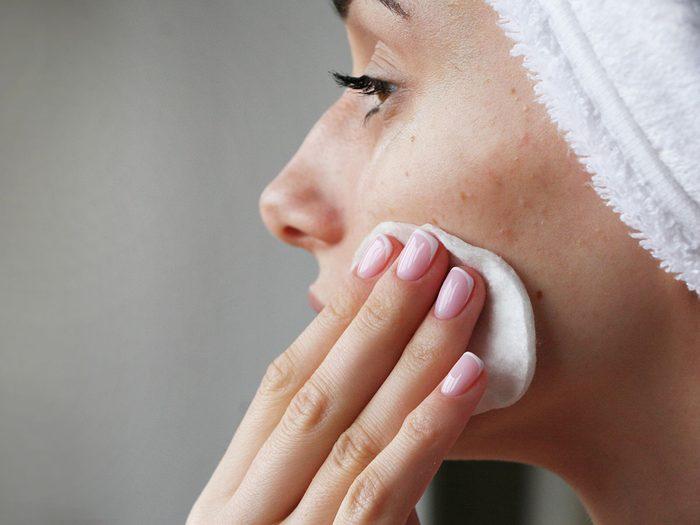 Faut-il utiliser de la gelée de pétrole sur une peau à tendance acnéique?