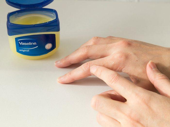 Assurez-vous que la peau est bien sèche et propre avant d'appliquer la gelée de pétrole.